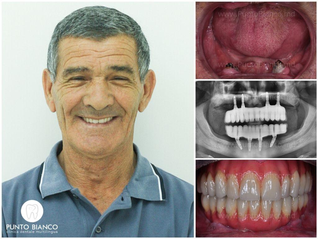 toronto bridge + implanturi all on four = dinți ficși pe ambele arcade dentare