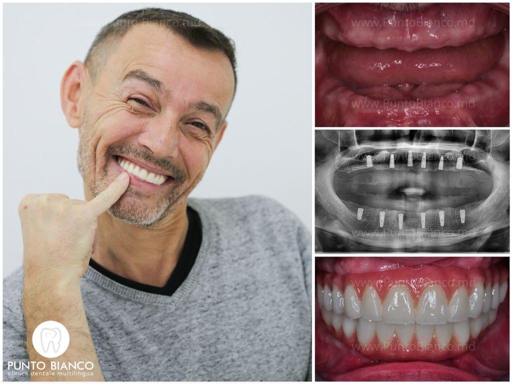 Acest pacient fericit a inserat implanturile dentare în Moldova, clinica Punto Bianco