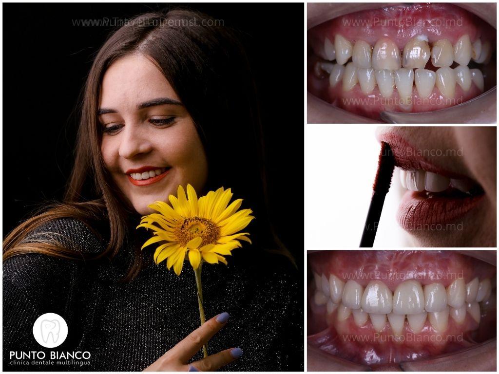 dinți distruși de carii, schimbați în culoare - acoperiți cu fațete dentare (venere) în Chișinău