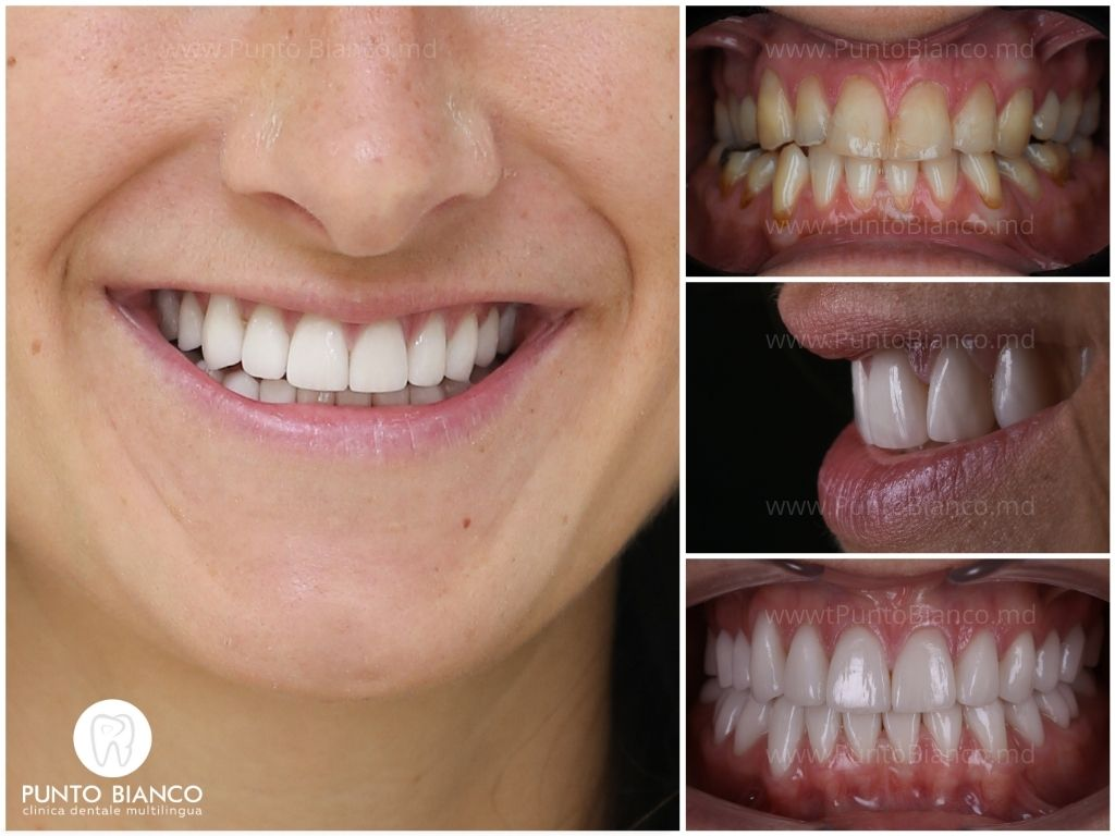 dinți galbeni, cariați și asimetrici (fotografia inițială) - transformați într-un zâmbet perfect cu fațete ceramice )