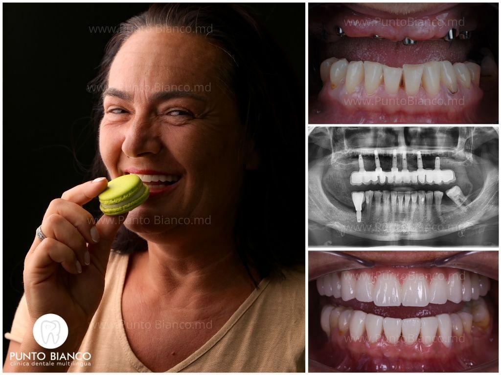 implanturi dentare bune și vinire ceramice estetice - pentru aceasta pacienta a zburat în moldova